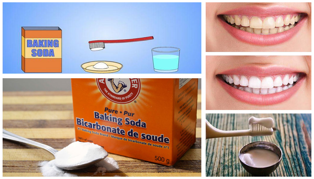 diy teeth whitening baking soda